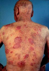 How I treat mycosis fungoides and Sézary syndrome | Blood Journal
